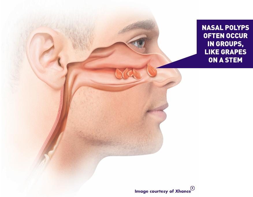 nasalimage